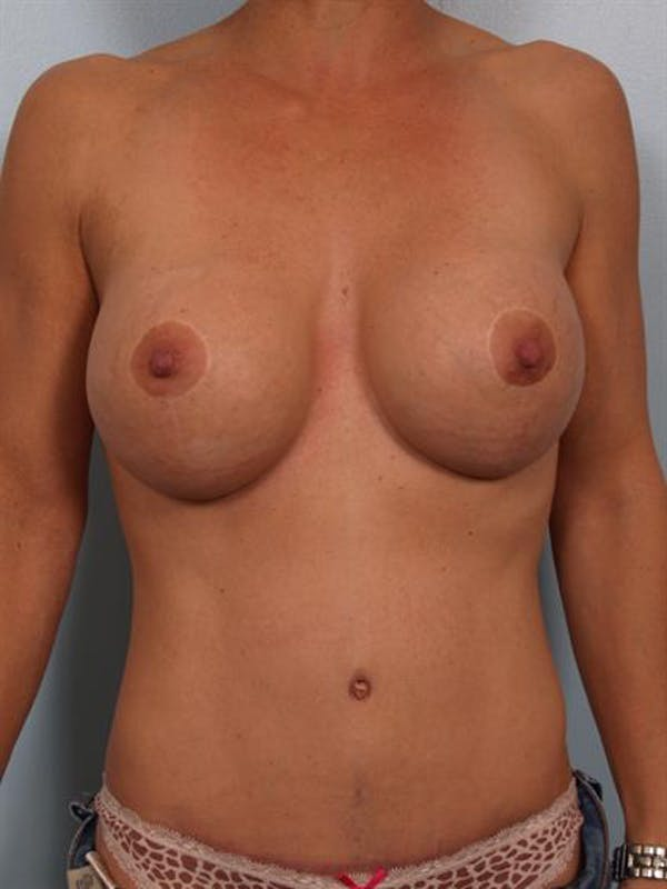 Breast Lift Gallery - Patient 1310413 - Image 2