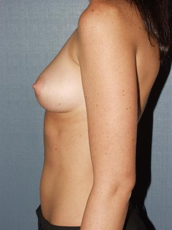 Breast Augmentation Gallery - Patient 1310411 - Image 3