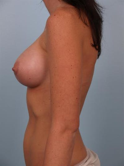 Breast Augmentation Gallery - Patient 1310411 - Image 4