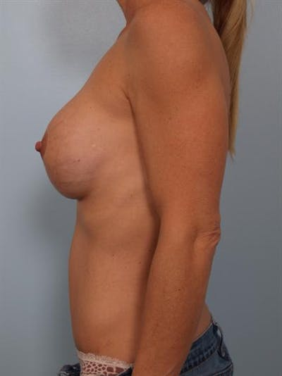 Breast Lift Gallery - Patient 1310413 - Image 4