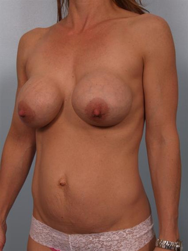 Breast Lift Gallery - Patient 1310413 - Image 5