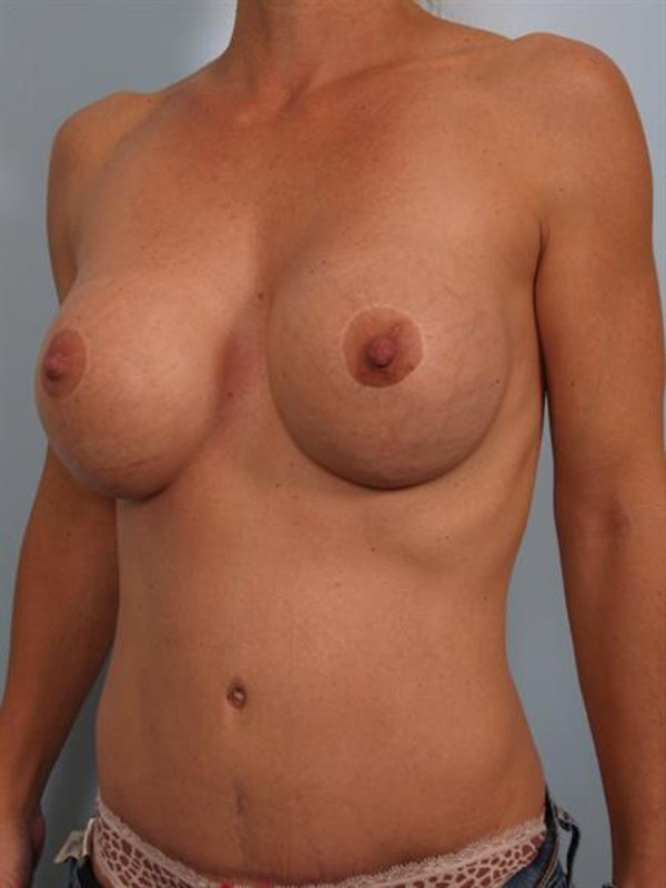 Breast Lift Gallery - Patient 1310413 - Image 6