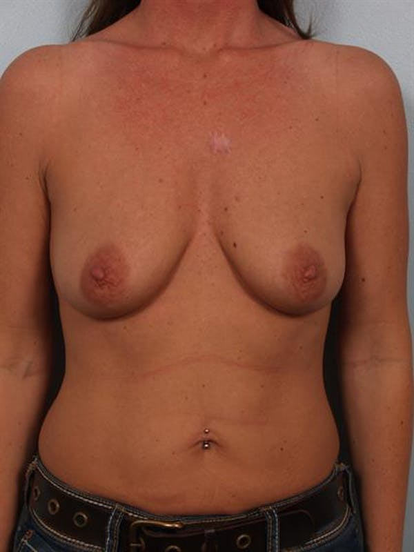 Breast Augmentation Gallery - Patient 1310414 - Image 1