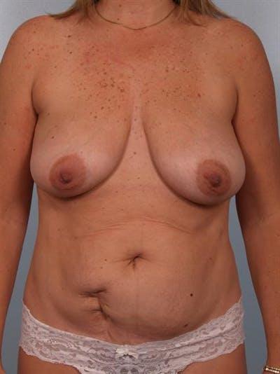 Breast Lift Gallery - Patient 1310415 - Image 1
