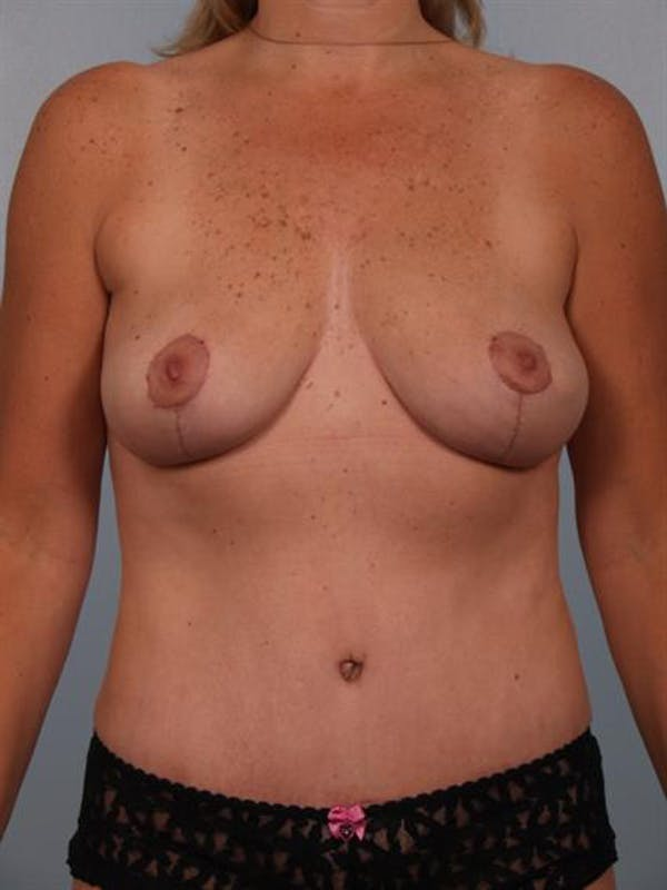 Breast Lift Gallery - Patient 1310415 - Image 2