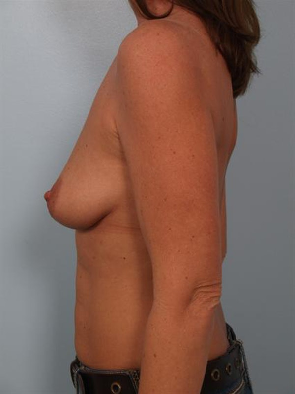 Breast Augmentation Gallery - Patient 1310414 - Image 5
