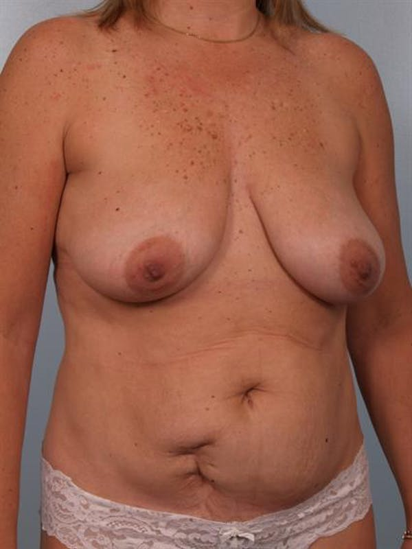 Breast Lift Gallery - Patient 1310415 - Image 3