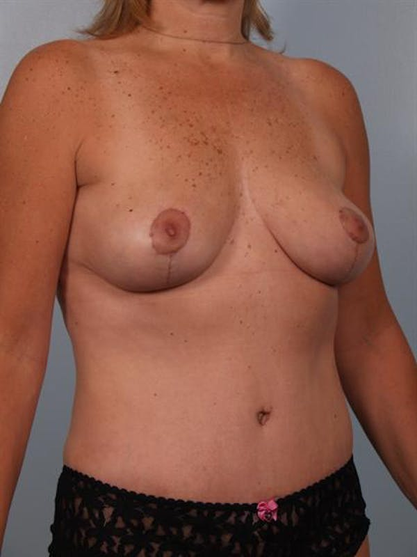 Breast Lift Gallery - Patient 1310415 - Image 4