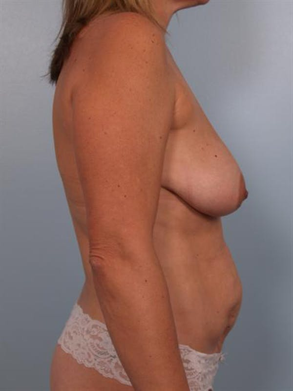 Breast Lift Gallery - Patient 1310415 - Image 5