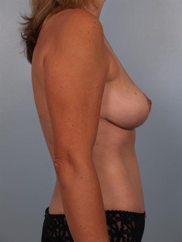 Breast Lift Gallery - Patient 1310415 - Image 6