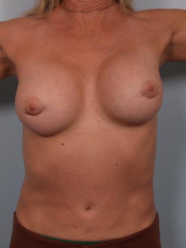 Breast Lift Gallery - Patient 1310417 - Image 1