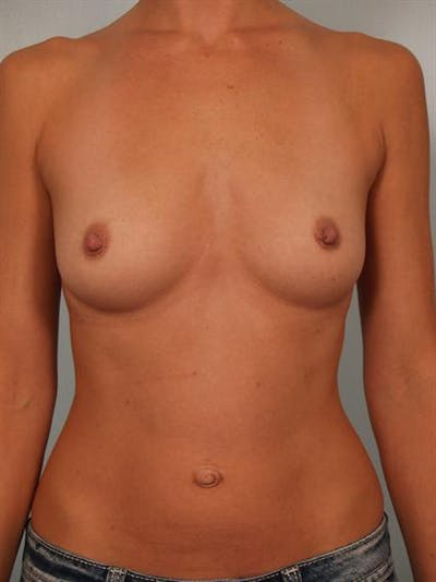 Breast Augmentation Gallery - Patient 1310416 - Image 1