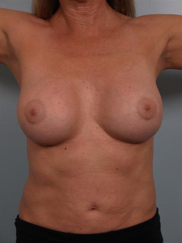 Breast Lift Gallery - Patient 1310417 - Image 2