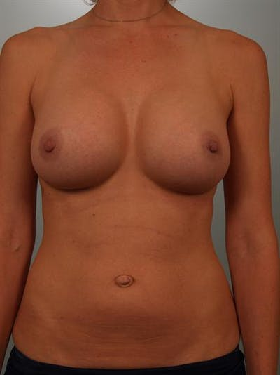 Breast Augmentation Gallery - Patient 1310416 - Image 2