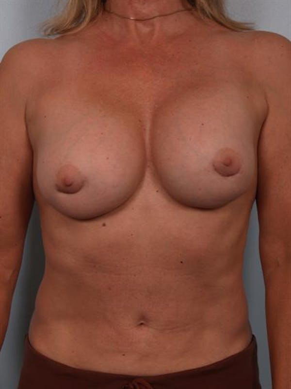 Breast Lift Gallery - Patient 1310417 - Image 3