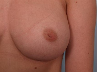 Nipple/Areolar Surgery Gallery - Patient 1310418 - Image 1