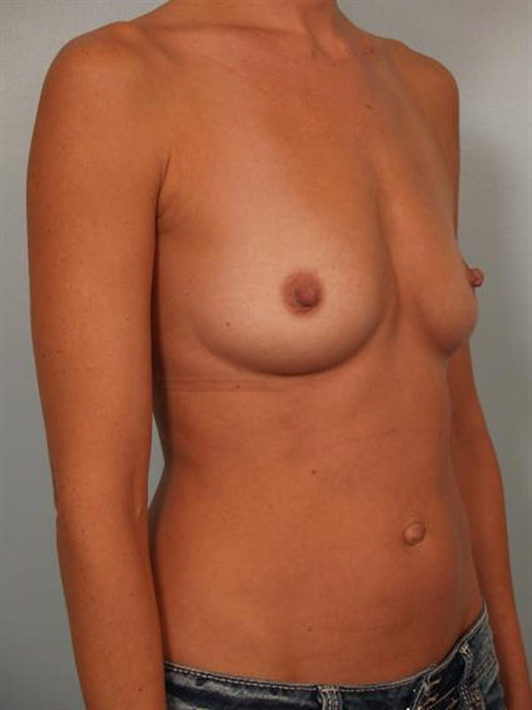Breast Augmentation Gallery - Patient 1310416 - Image 3