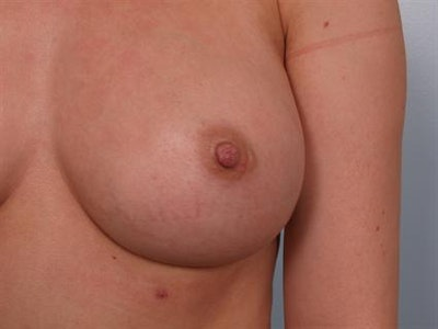 Nipple/Areolar Surgery Gallery - Patient 1310418 - Image 2