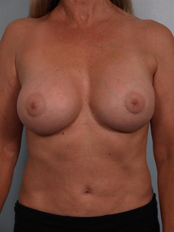 Breast Lift Gallery - Patient 1310417 - Image 4