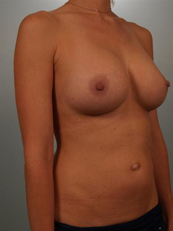 Breast Augmentation Gallery - Patient 1310416 - Image 4