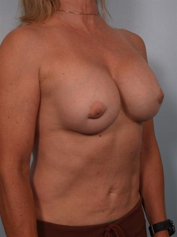 Breast Lift Gallery - Patient 1310417 - Image 5