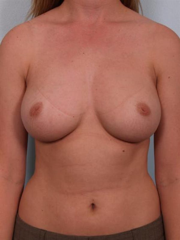 Nipple/Areolar Surgery Gallery - Patient 1310418 - Image 3
