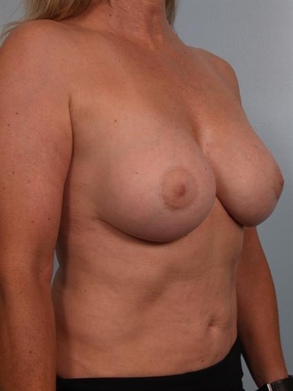 Breast Lift Gallery - Patient 1310417 - Image 6
