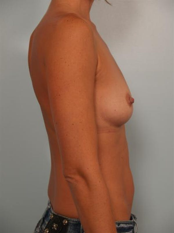 Breast Augmentation Gallery - Patient 1310416 - Image 5