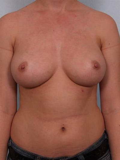 Nipple/Areolar Surgery Gallery - Patient 1310418 - Image 4