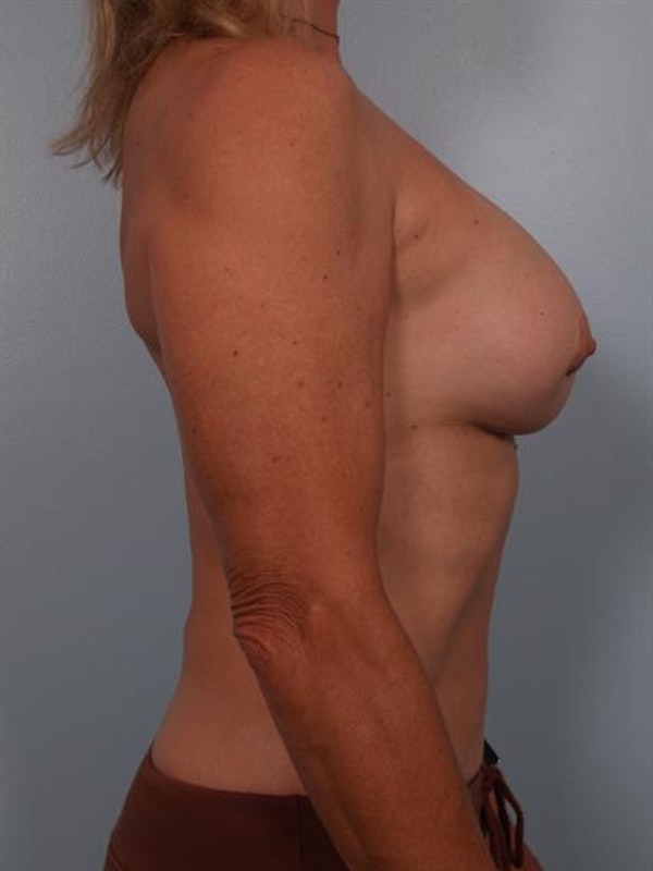 Breast Lift Gallery - Patient 1310417 - Image 7