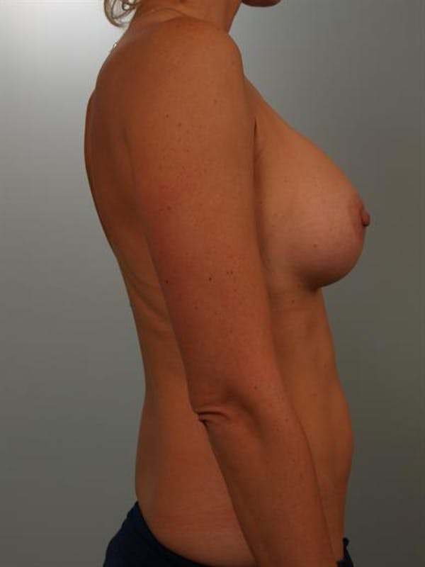 Breast Augmentation Gallery - Patient 1310416 - Image 6
