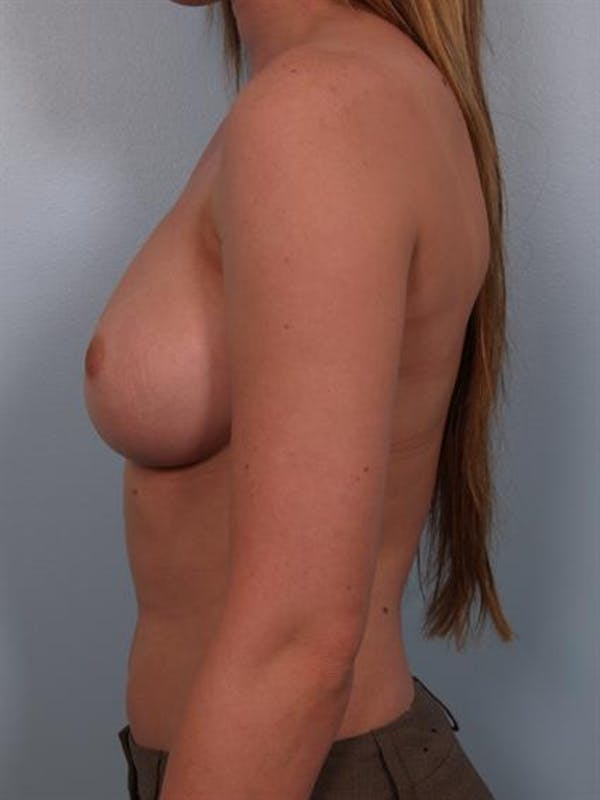 Nipple/Areolar Surgery Gallery - Patient 1310418 - Image 5