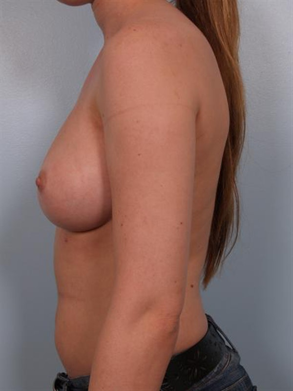 Nipple/Areolar Surgery Gallery - Patient 1310418 - Image 6