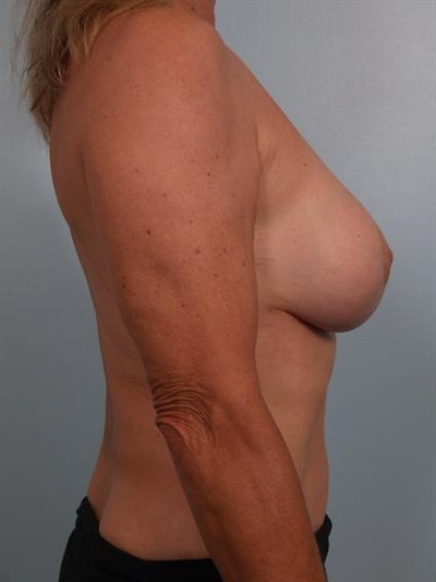 Breast Lift Gallery - Patient 1310417 - Image 8