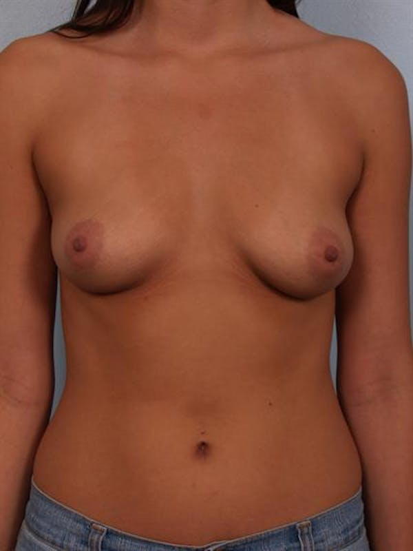 Breast Augmentation Gallery - Patient 1310421 - Image 1