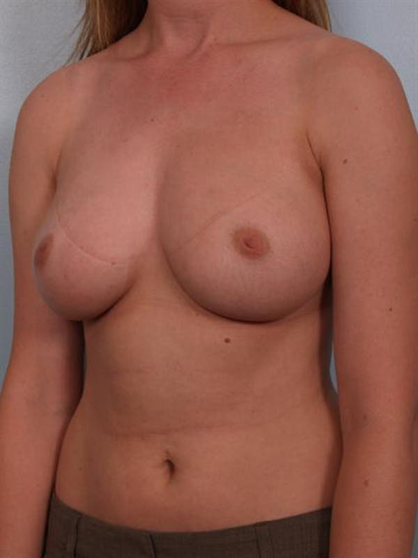 Nipple/Areolar Surgery Gallery - Patient 1310418 - Image 7