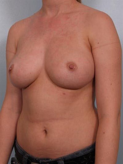 Nipple/Areolar Surgery Gallery - Patient 1310418 - Image 8