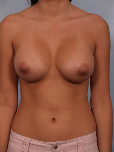 Breast Augmentation Gallery - Patient 1310421 - Image 2