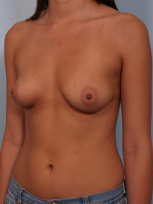 Breast Augmentation Gallery - Patient 1310421 - Image 3