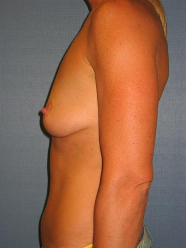 Breast Lift Gallery - Patient 1310419 - Image 3