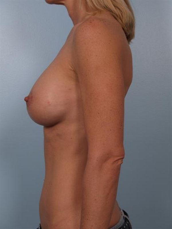 Breast Lift Gallery - Patient 1310419 - Image 4