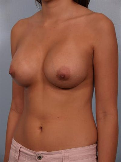 Breast Augmentation Gallery - Patient 1310421 - Image 4