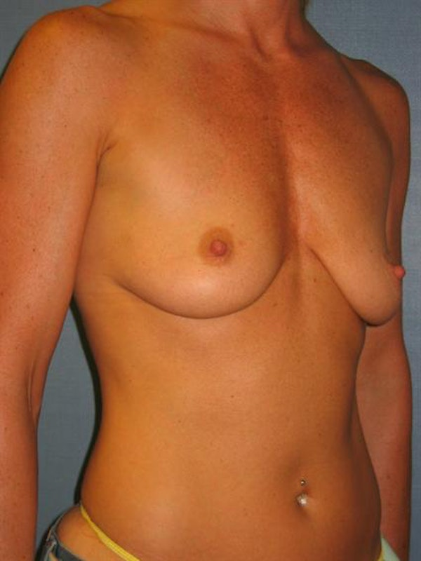 Breast Lift Gallery - Patient 1310419 - Image 5