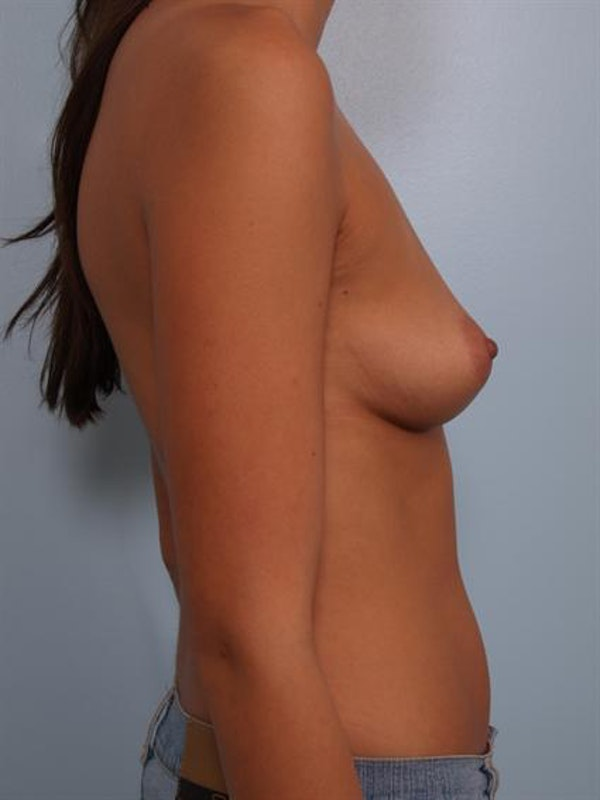Breast Augmentation Gallery - Patient 1310421 - Image 5