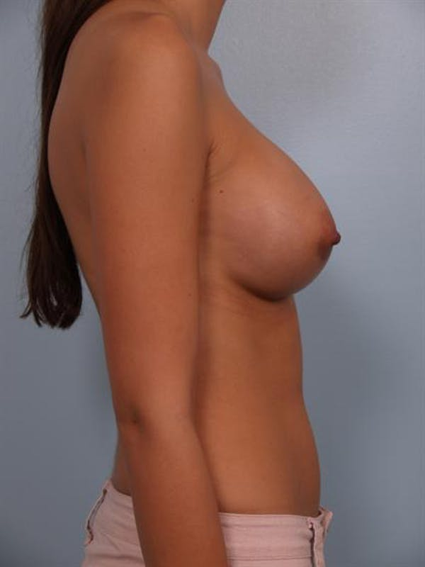 Breast Augmentation Gallery - Patient 1310421 - Image 6
