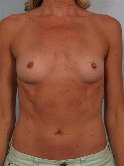 Breast Augmentation Gallery - Patient 1310426 - Image 1