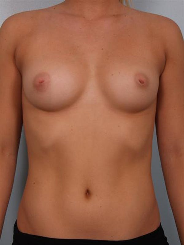 Nipple/Areolar Surgery Gallery - Patient 1310425 - Image 3
