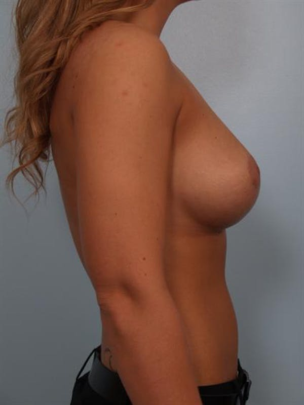 Breast Lift Gallery - Patient 1310424 - Image 4