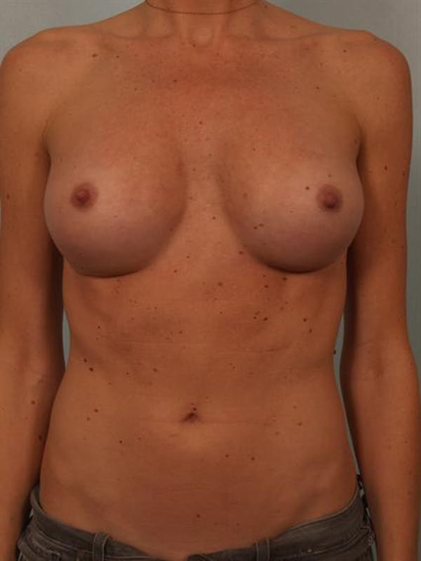 Breast Augmentation Gallery - Patient 1310426 - Image 2