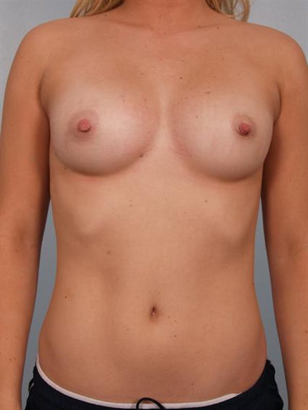 Nipple/Areolar Surgery Gallery - Patient 1310425 - Image 4